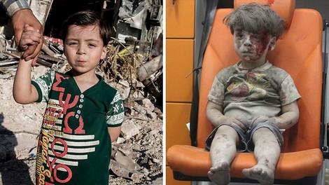 Omran aus Aleppo wurde das Gesicht des Syrien-Krieges. Das Foto hat sein Leben für immer verändert.