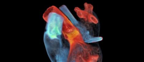 Digitale Kopien unserer Organe zu bauen ist kompliziert. Doch es könnte sich lohnen