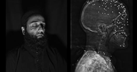 """Wie """"nicht-tödliche"""" Waffen in Kaschmir verletzen, blenden & töten"""